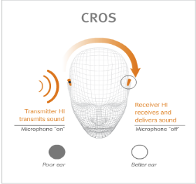 CROS Technology for Cochlear Implants