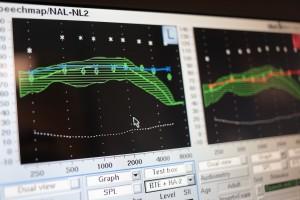 audiometric-evaluation