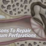 ear-drum-perforation-repair