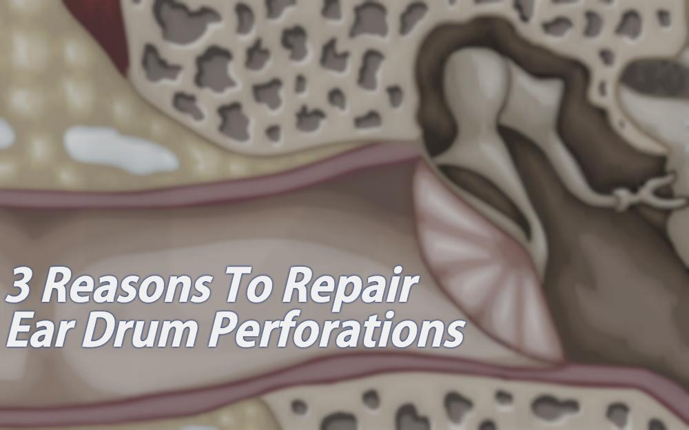 3 Reasons To Repair Ear Drum Perforations Arizona